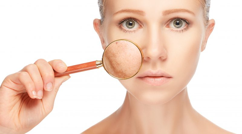 Czym są przebarwienia skórne i jak sobie z nimi radzić?